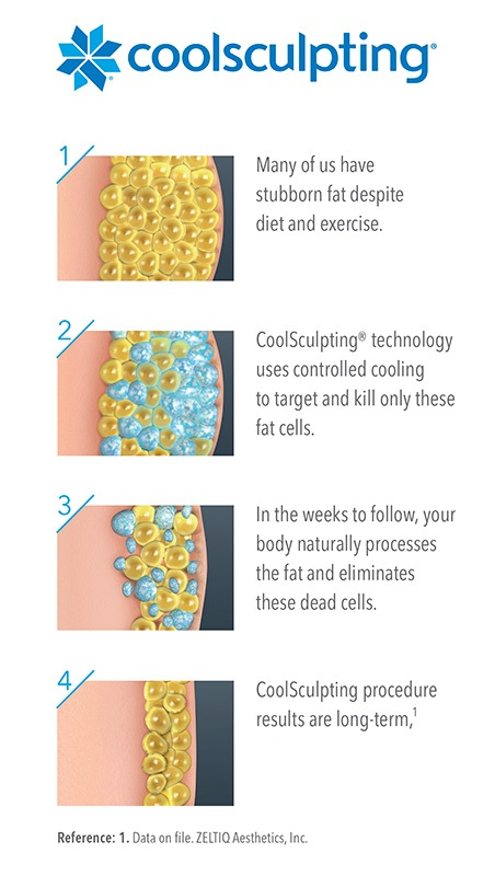 how CoolSculpting works tanzi