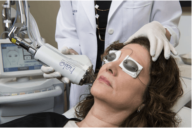 Halo Laser Procedure Chevy Chase, MD