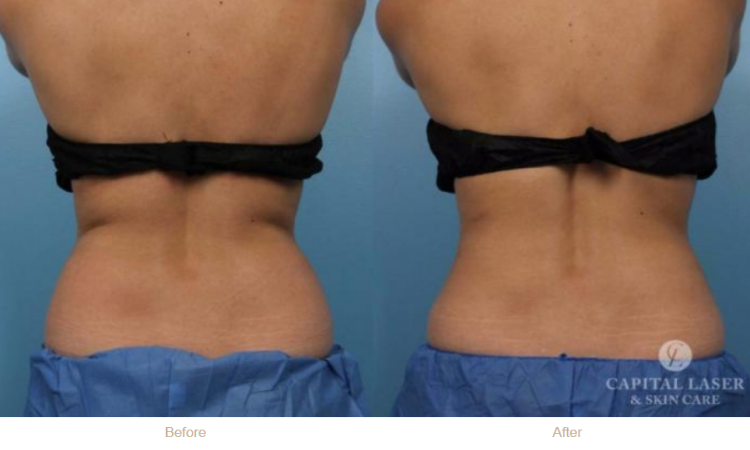 Chevy Chase Coolsculpting