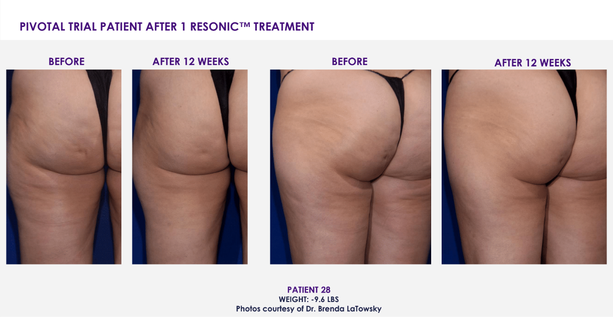 Cellulite Treatment Chevy Chase